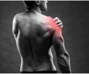 Common shoulder injuries resulting from a car accident